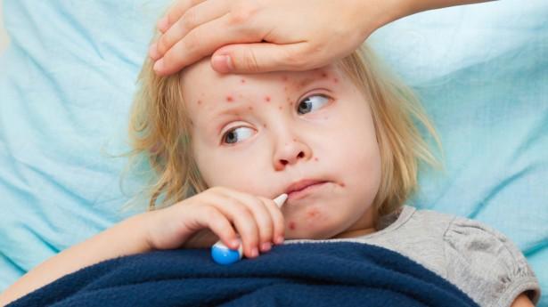 Dziecko nieszczepione szybko może zarazić się ospą